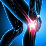 Chondromalacia Patella Knee Pain
